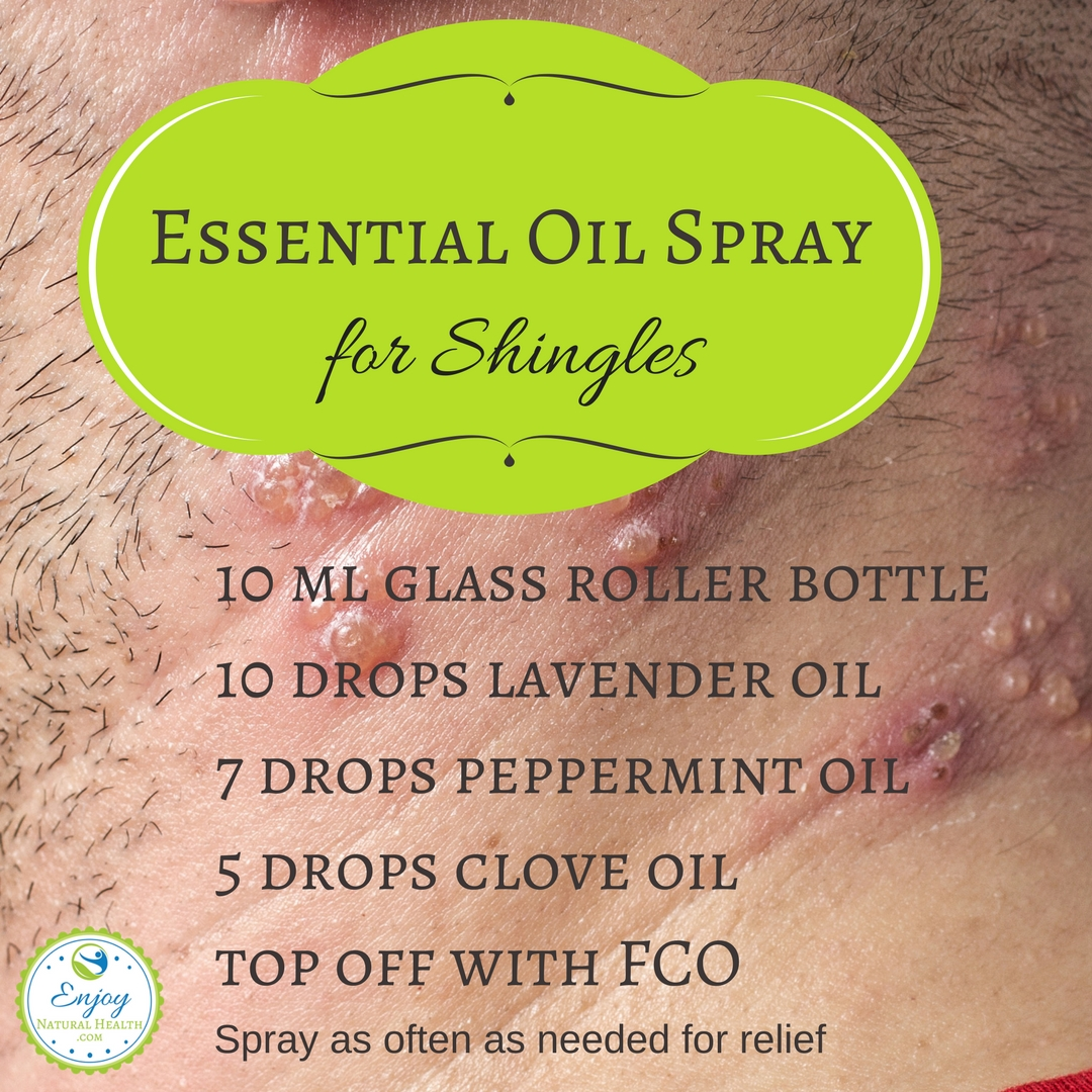 Essential Oils Spray for Shingles