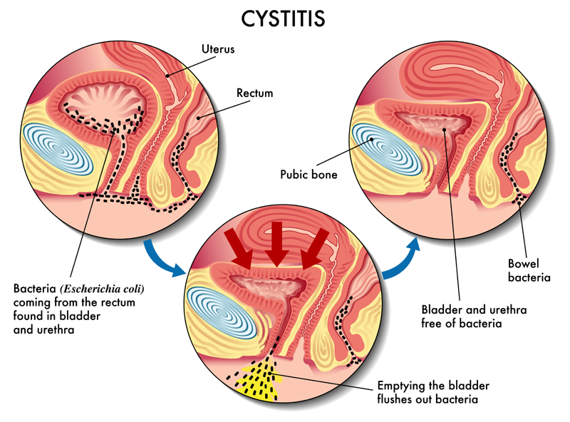 causes of bladder infection