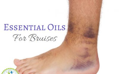 essential oils for bruises