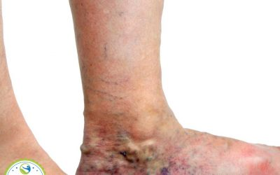 Learn how to get rid of spider veins naturally