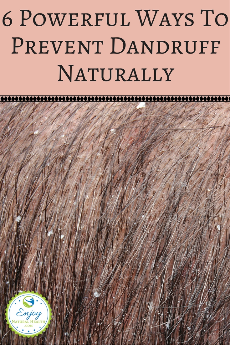 Don't you hate dander? Yeah, me too! Here are 6 powerful ways to prevent dandruff naturally